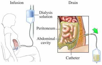 servicio-dialisis-peritoneal-panama